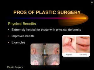plastic-surgery-57-638