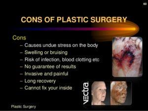 plastic-surgery-60-638